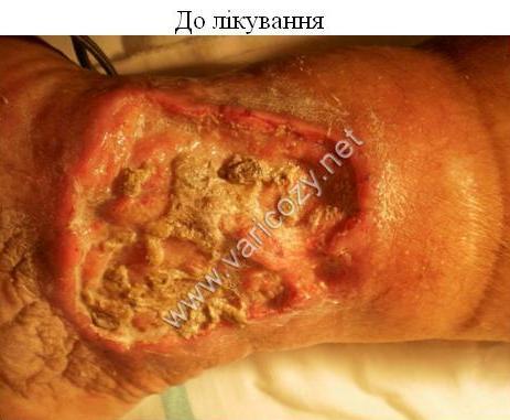 Что делать если на ногах варикозная сеточка
