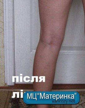 Відгук вдячності за спасіння краси)))))