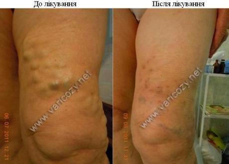Фотографии пациентов с диагнозом - Варикозное расширение вен